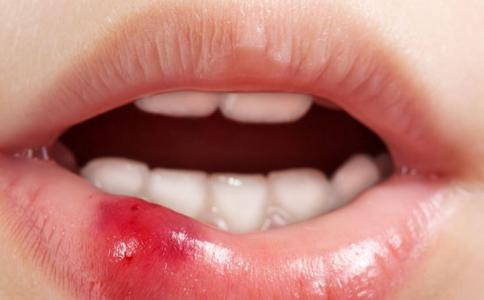烂嘴角用什么药 烂嘴角药可以和中药合用吗 烂嘴角药不能和什么药一起合用