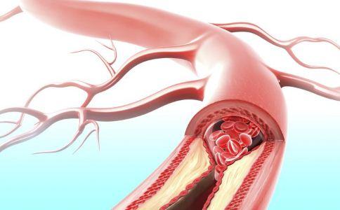 堵塞的动脉会影响处方药的效果 堵塞的动脉会影响处方药效果 堵塞的动脉对处方药有哪些影响