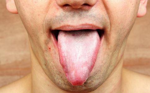 艾滋病患者舌头症状 艾滋病患者舌头是什么症状 艾滋病患者舌头有哪些症状