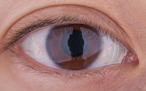 眼皮浮肿是不是得了肾炎 肾炎有哪些表现症状 肾炎会诱发哪些疾病