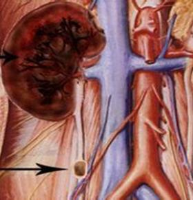 如何预防泌尿系结石