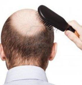 男妇科医生_男性如何预防秃顶 留住头发_健康快讯_新闻_99健康网
