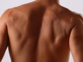 哪些原因易致男性阴囊湿疹