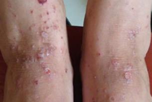 洗澡过勤容易患上湿疹