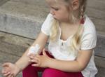 湿疹怎么预防