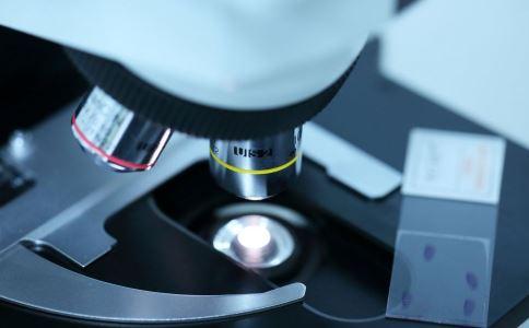 艾滋病怎么检查 如何检查艾滋病 检查艾滋病的最佳时间是什么时候