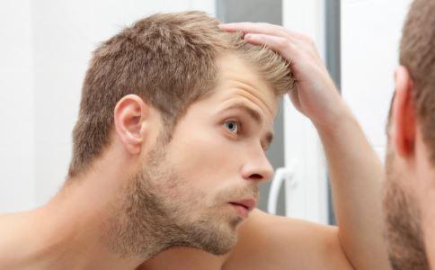 男性脂溢性脱发 男性脱发 脂溢性脱发偏方