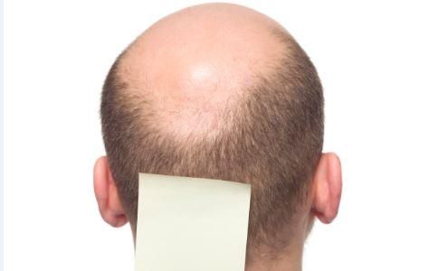 溢脂性脱发 溢脂性脱发偏方 治疗溢脂性脱发偏方