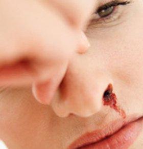 鼻咽癌患者日常如何护理 鼻咽癌治疗方法是什么 鼻咽癌该如何治疗
