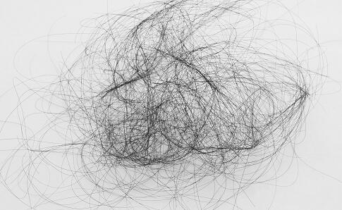 男性脱发的原因有哪些 男性脱发怎么来预防 预防男性脱发的方法