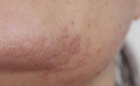 使用洗面奶洗脸的误区 脸上过敏能用洗面奶吗 洗面奶过敏症状