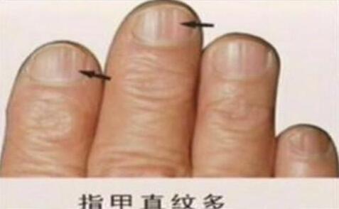 新闻 健康快讯 > 正文     每个人都有10个手指甲,只是知道指甲会不断图片