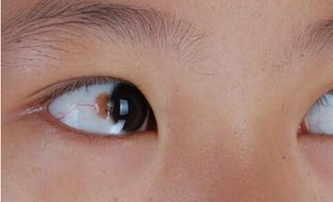 眼白发红怎么回事 眼睛颜色看身体健康