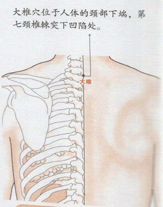 大椎穴位的准确位置图 大椎穴位图 大椎穴