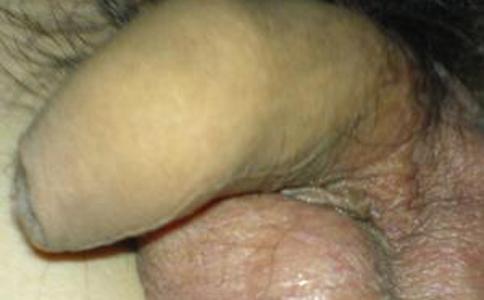 包皮过长的危害有哪些 包皮过长不治疗行吗 包皮过长一定要手术吗