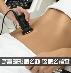 子宫畸形怎么办 子宫畸形怎么检查