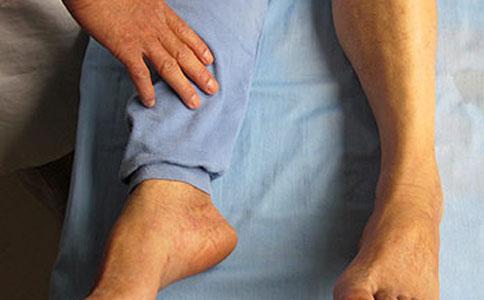 脉管炎和静脉炎的区别 脉管炎和静脉炎有什么区别 脉管炎的症状