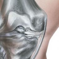 关节炎如何预防才好 关节炎高发人群 关节炎怎么预防