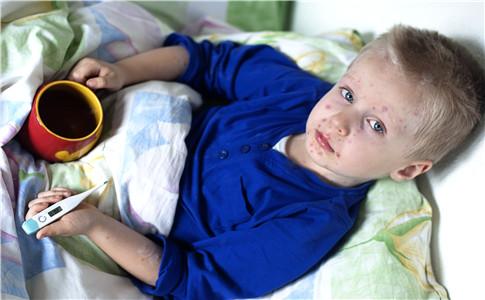 小儿荨麻疹的症状