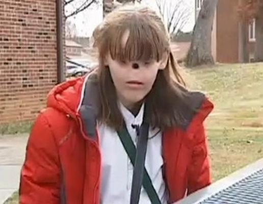 美国女孩生来没有眼睛鼻子