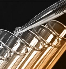 寨卡病毒疫苗有了吗?或2016年底前推出