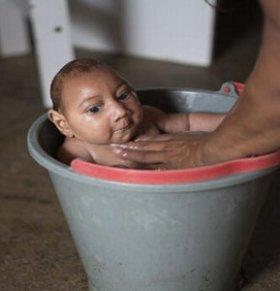 巴西寨卡病毒蔓延 270例新生儿小头症被确诊