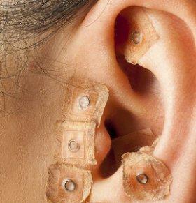 中医治疗便秘的方法 耳穴如何治疗便秘 耳穴治疗便秘方法