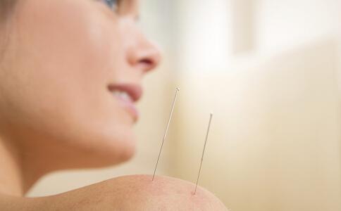 肩周炎怎么治 肩周炎针灸方法 针灸治疗肩周炎
