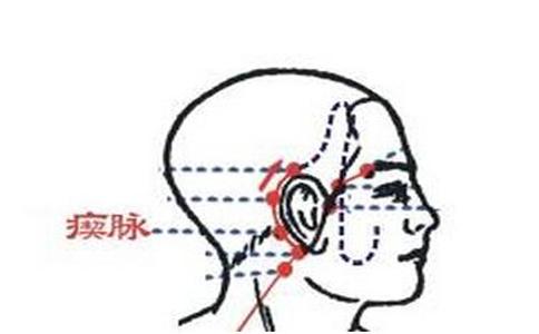 瘈脉穴穴位的准确位置图 瘈脉穴的准确位置在哪里 瘈脉穴的具体位置