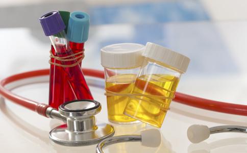 尿检怎么进行 尿检要注意哪些 尿检怎么检查