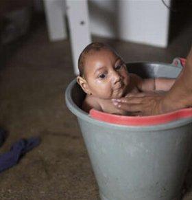 巴西小头畸形病例从583例增加到641例