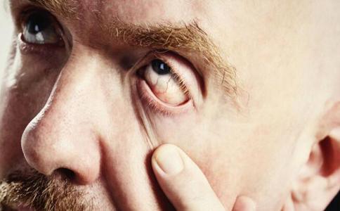 青光眼最爱这五类人 青光眼的早期症状
