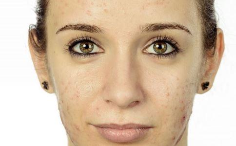 如何使用Photoshop把图片中自己脸上痘痘去掉?