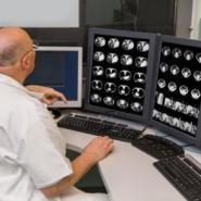 癌症的种类有哪些 常见癌症种类 癌症分类