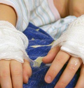 宝宝烫伤怎么办 宝宝流鼻血怎么办 宝宝扭伤怎么办