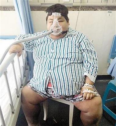 新重庆第一胖重360斤切胃手术助减肥怎么样减小腿脂肪图片