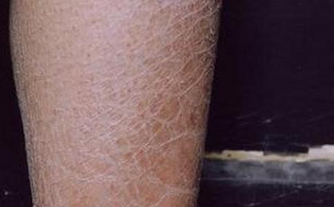 夏季要如何治疗皮肤病 夏季皮肤病的治疗方法有哪些 哪些方法可以治疗皮肤病