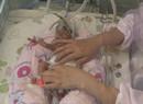 江苏早产女婴胳膊如成人手指 护士细心呵护