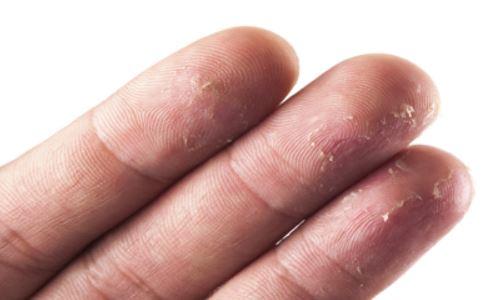 导致手部脱皮的原因有哪些 什么原因会导致手部脱皮 手部脱皮是什么因素引起的