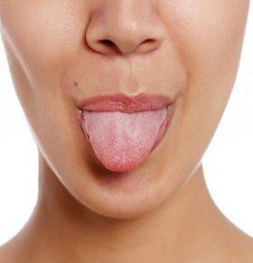 地图舌(游走性舌炎)会遗传吗 地图舌是因为遗传的吗 游走性舌炎会遗传吗