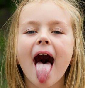 地图舌(游走性舌炎)能治好吗 游走性舌炎能治好吗 地图舌可以治好吗