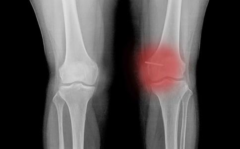 膝关节炎严重吗 膝关节炎有哪些症状 膝关节炎介绍