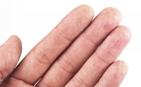 手上总长泡是什么原因 手上总长泡怎么办 手上长泡的原因是什么