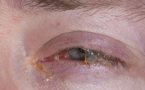 角膜病的症状有哪些 如何治疗角膜病 角膜病的类型有哪些
