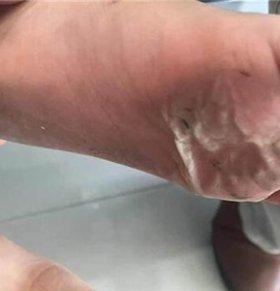 光脚找妈妈被烫伤 高温天脚底严重烫伤