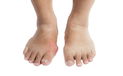 老人為什麼腳會腫老人腳腫瞭如何消腫老人腳容易腫的原因