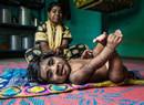 印度男孩患先天多毛症 毛发旺盛犹如狼孩