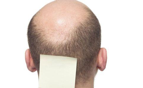 男性激素多易掉发 如何科学防脱发