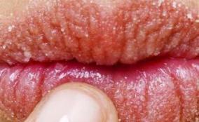 嘴唇干燥起皮_秋季嘴唇干燥_嘴唇干燥怎么办