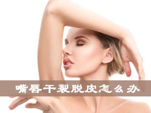 嘴唇干裂脱皮怎么办 涂涂抹抹更有效
